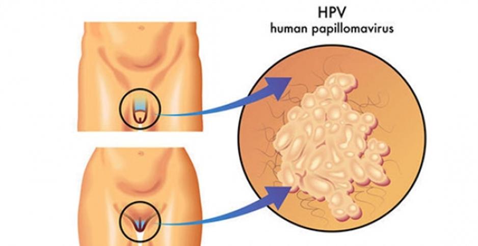hpv human nedir