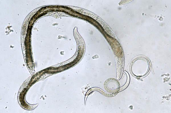 tipuri de paraziti viermi