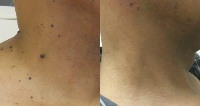 Kollomak din papiloame și neguri: instrucțiuni, recenzii, analogi - Alopecie