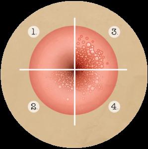 vaccin papillomavirus fonctionnement
