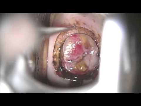 tratament de prevenire a papilomului