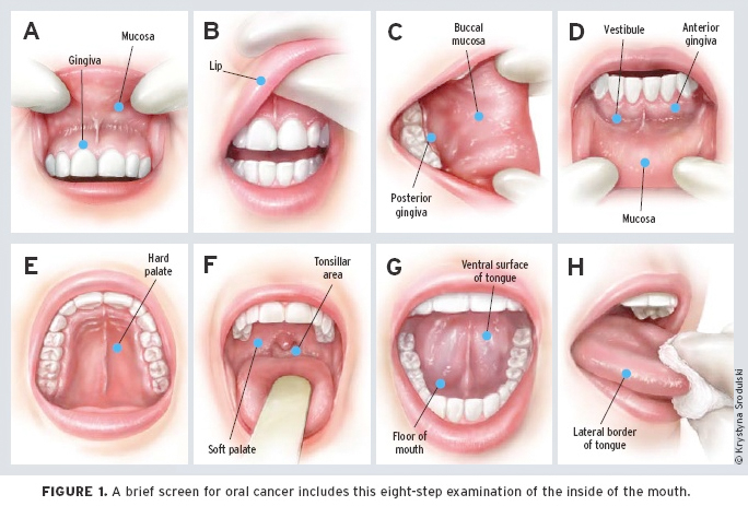 hpv in mouth cure