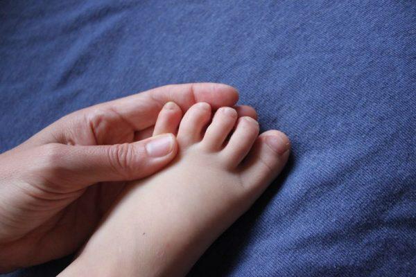 de ce se umezesc degetele de la picioare