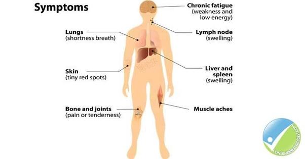 hodgkin cancer causes