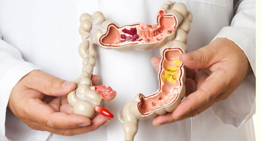 detoxifiere colon forum