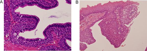 papilloma of parotid gland după îndepărtarea durerii verucilor genitale
