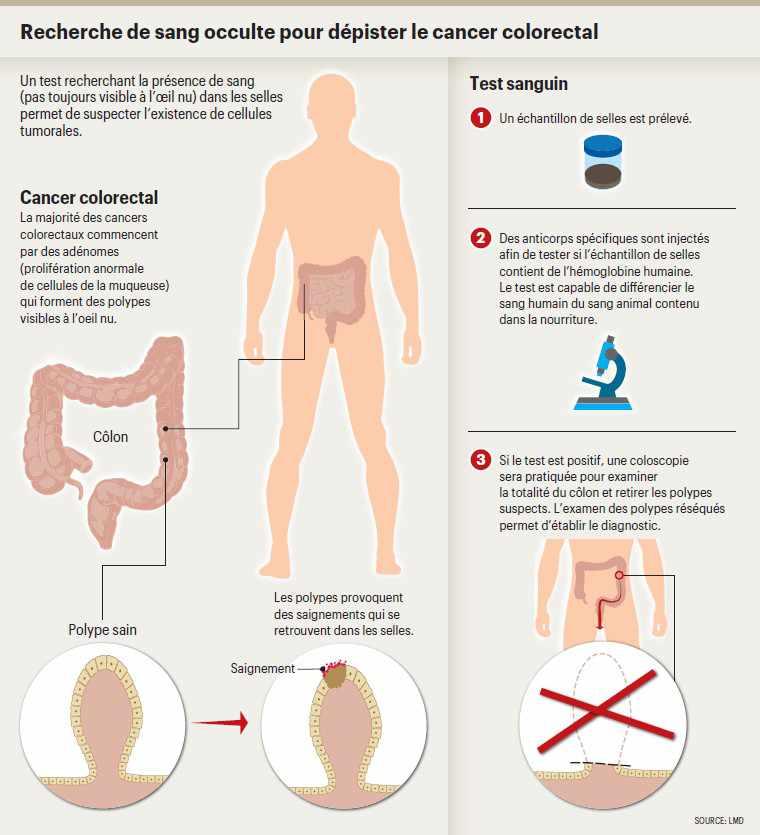 Cancer colon symptomes - Cancer colorectal femme symptomes