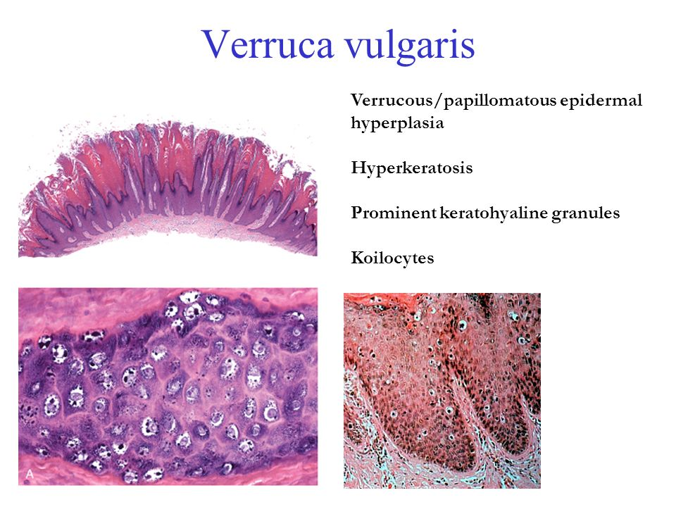 papilloma or infection helmintiaza ca tratament
