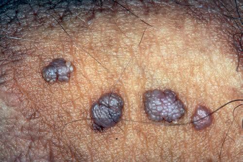 Chirurgia undelor radio îndepărtarea verucilor genitale. Bolile de helmint și prevenirea lor