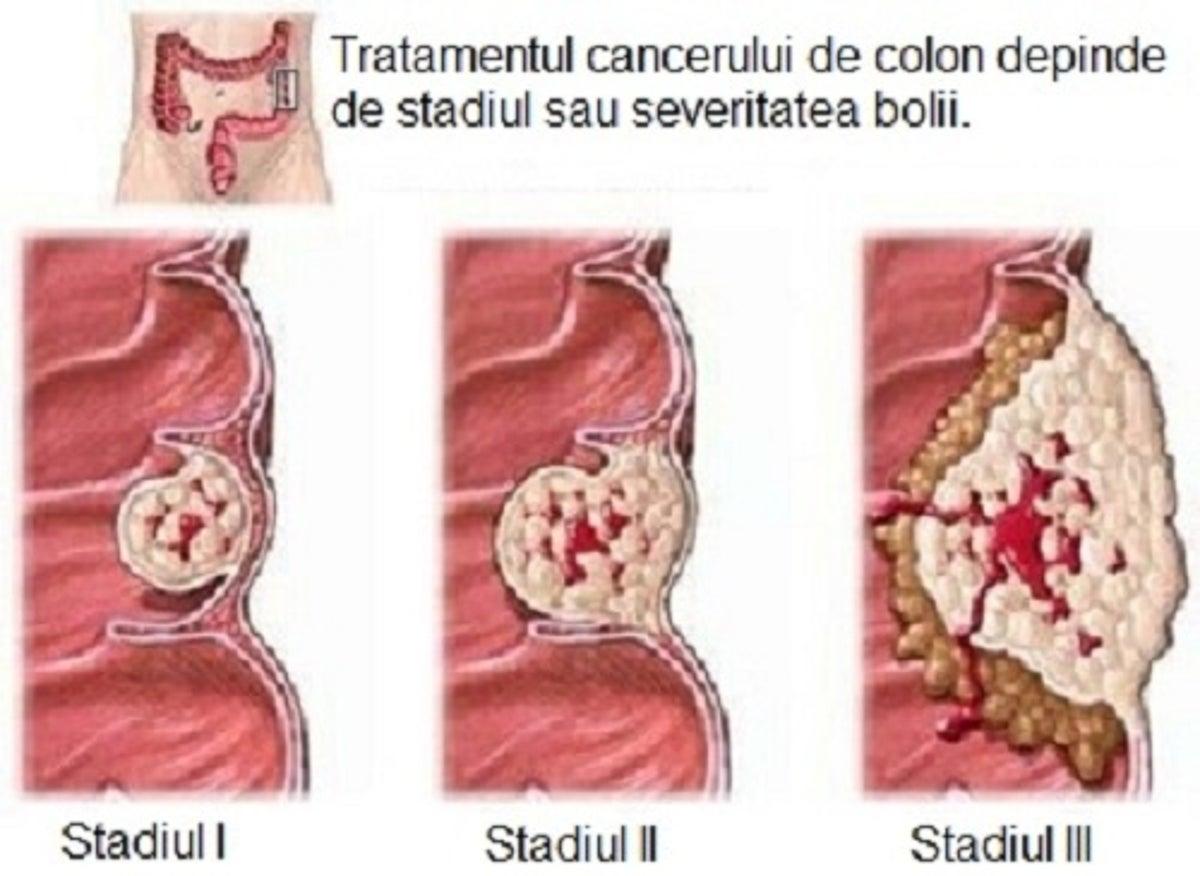 fecale ale copilului după tratamentul viermilor can hpv cause bladder infections