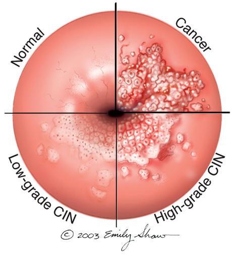 human papilloma is verucă plantară sub piele