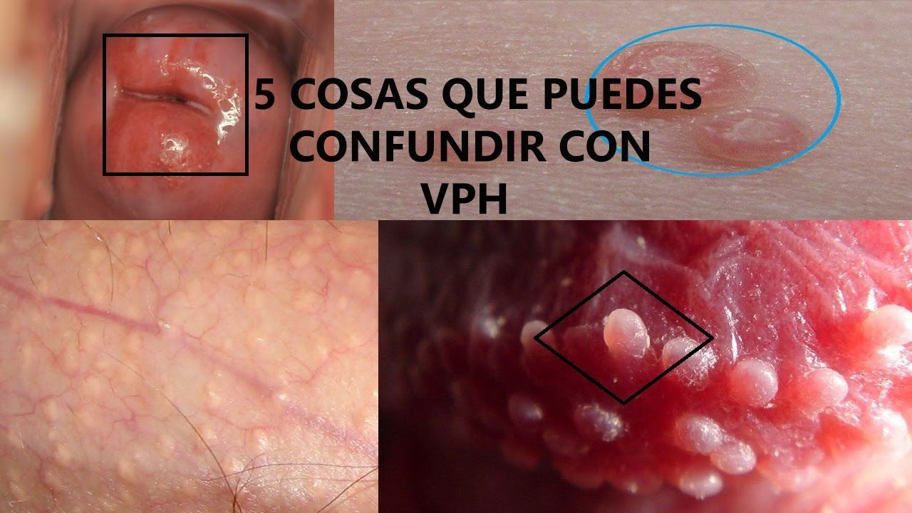 hpv provoca herpes