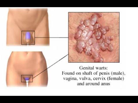 laryngeal papillomatosis lesion măsuri de control și prevenire a helmintului