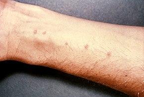 il papilloma virus negli uomini