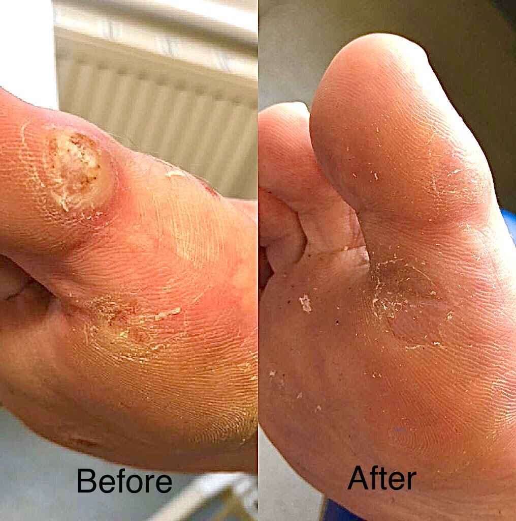 papilloma on foot removal