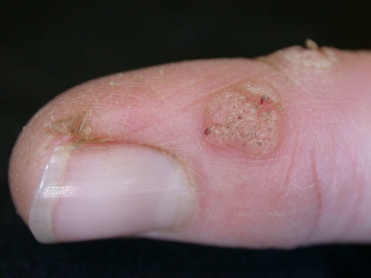 warts on hands and elbows