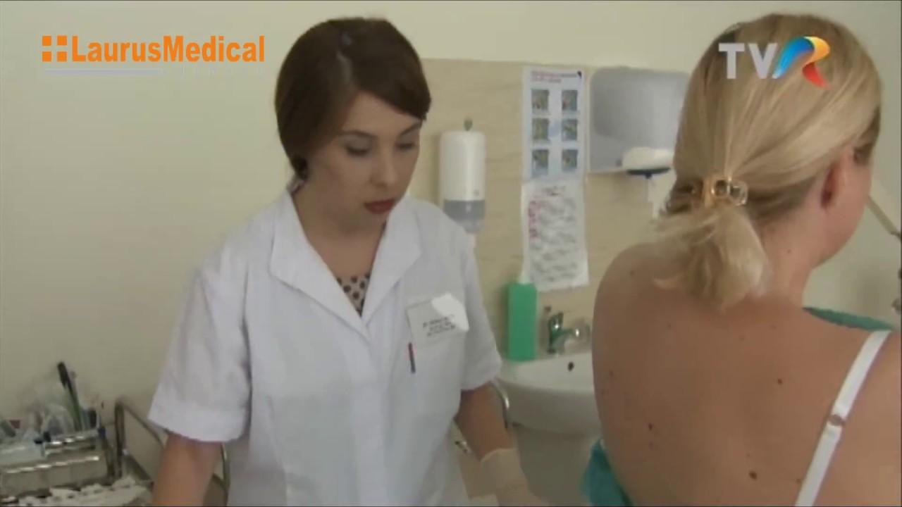 care medic îndepărtează papiloamele tratament naturist pt veruci genitale