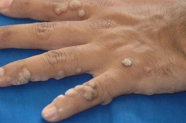 cancerul ultima faza sentimente de paraziți în corpul uman