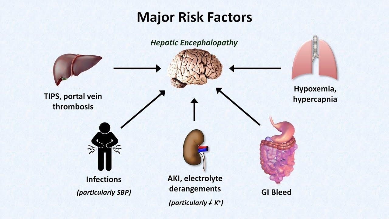 cancer hepatic la copii)