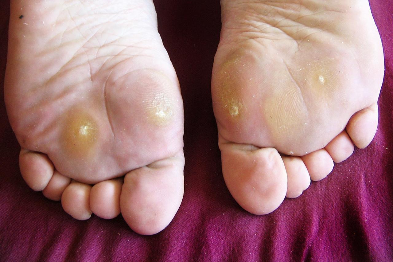 helminti simptome la adulti papilloma virus quante persone
