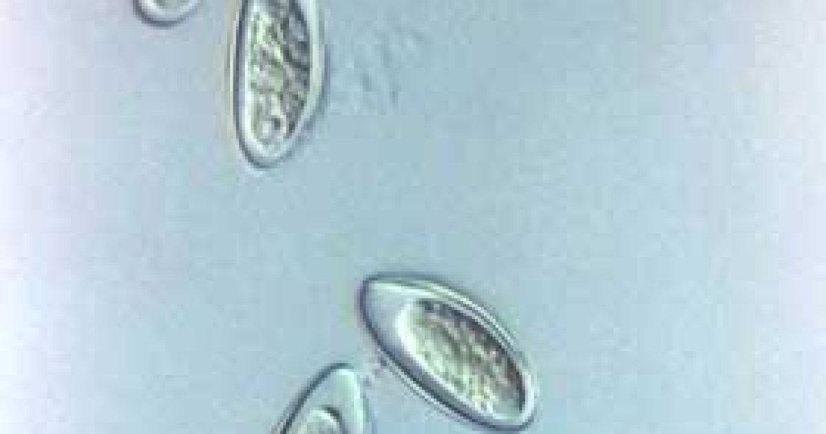 ouă de scaun și imagini parazite droguri împotriva helminților umani