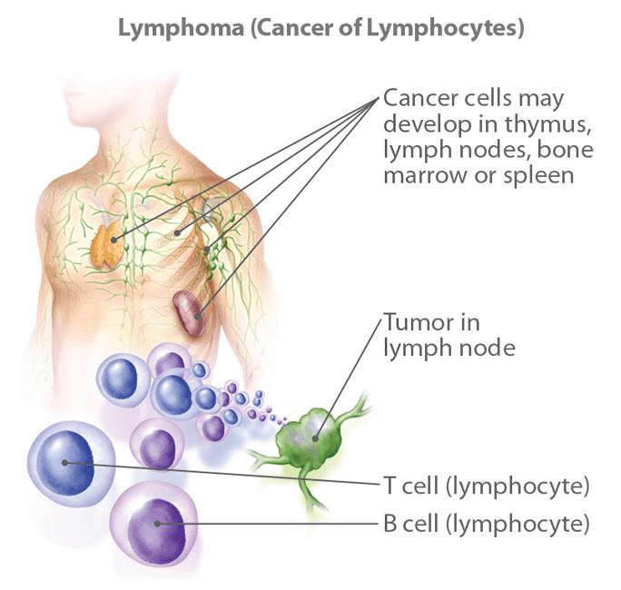 hodgkin cancer causes paraziți în tratamentul fecalelor