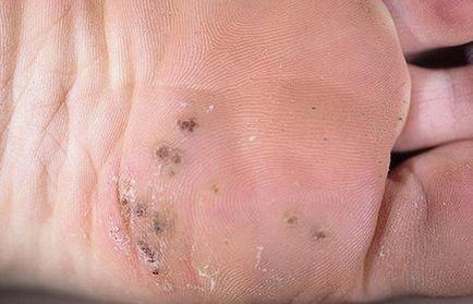 intraductal papilloma lump