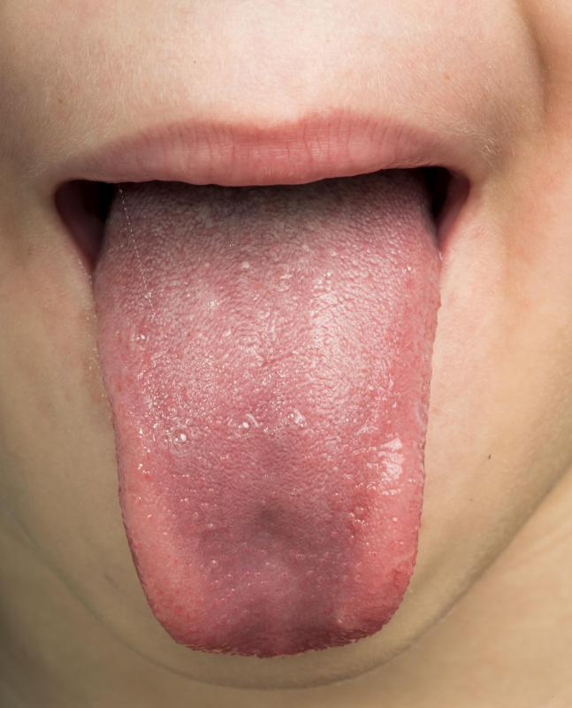 tenii pot absorbi alimentele denumirea bolii de vierme