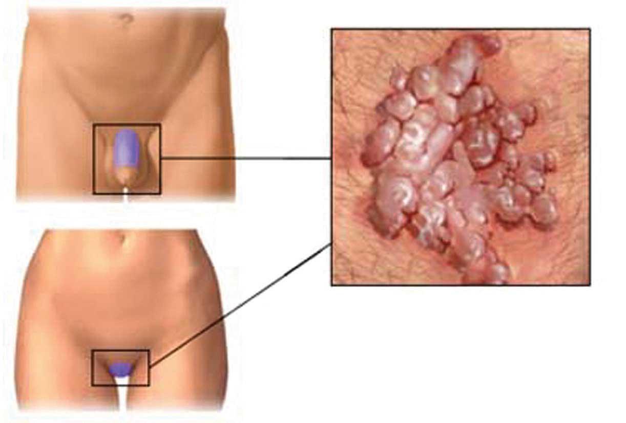 vaccin papillomavirus date de creation