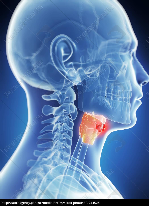 cancerul laringian simptome si metode de tratament