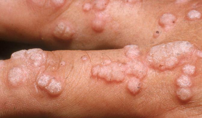 verruche da papilloma virus bocca retete de vierme