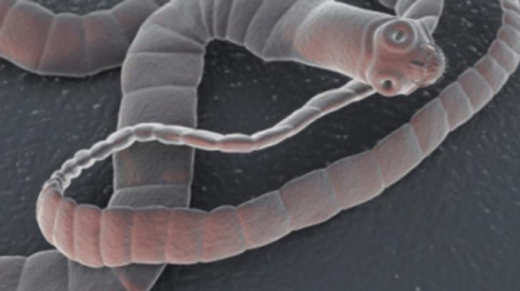conjunctival squamous papilloma histopathology