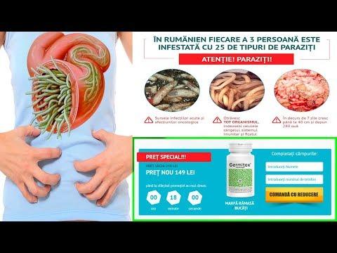 tratamentul cu paraziti ceboksari