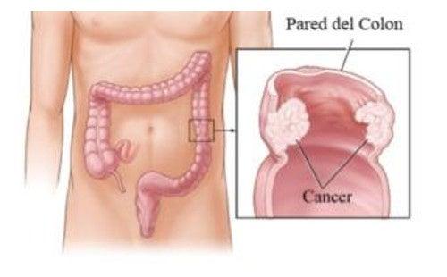 helmintele sunt simptome ale corpului uman)