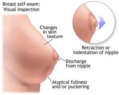 cancer feminin simptome)