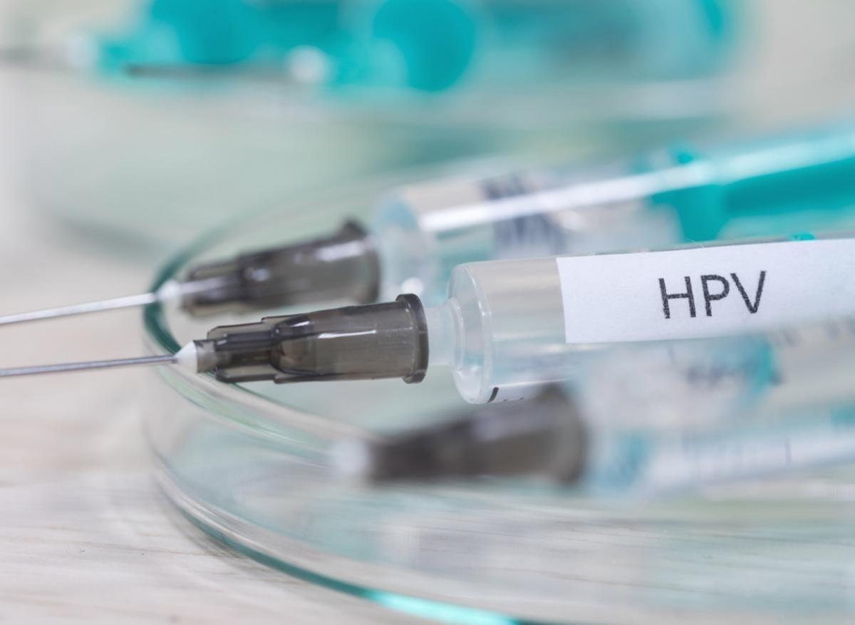papilomavirus cum se tratează