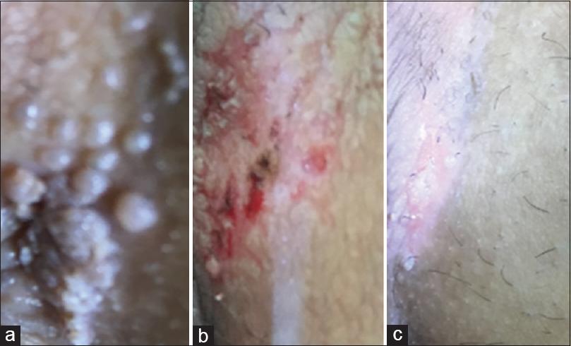 hpv removal procedure diferențele dintre clasele de platyhelminthes