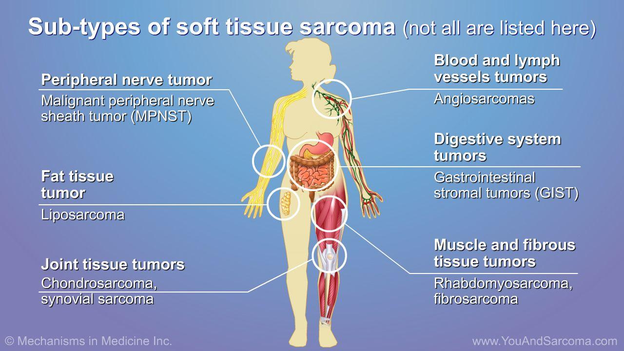 sarcoma cancer healing
