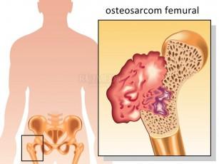 Tumorile maduvei spinarii