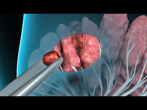 intraductal papilloma removal produse de la viermi la copii
