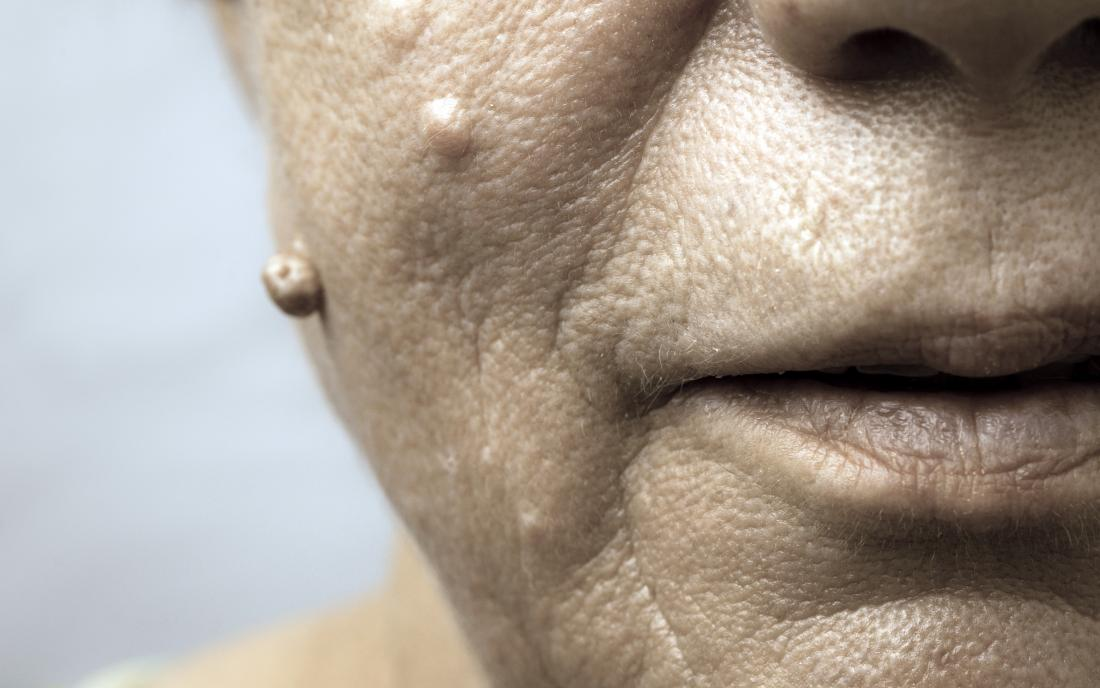 warts treatment face tratarea viermilor de tavegil