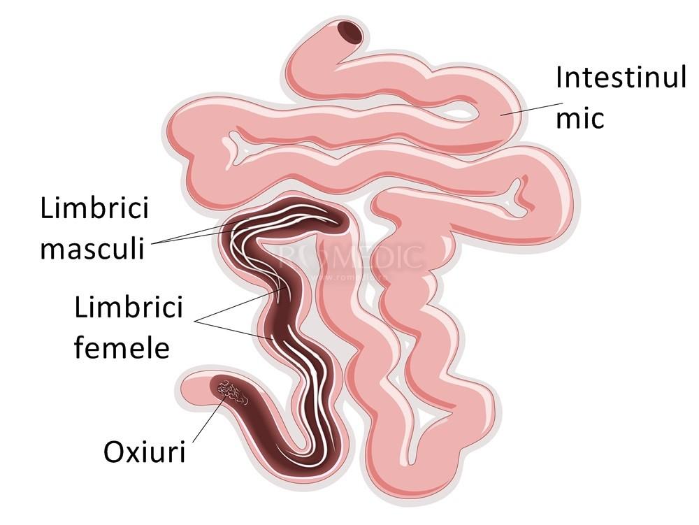 dezintoxicarea a crescut mișcările intestinale