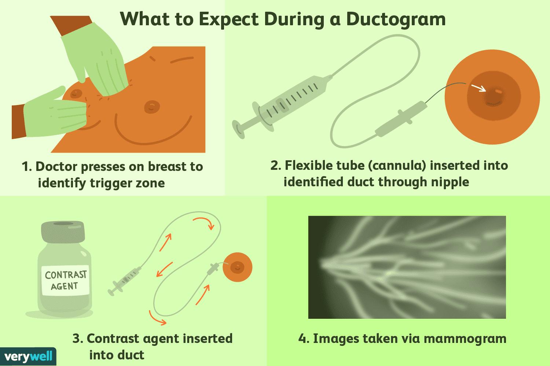 duct papilloma discharge warts on dark skin