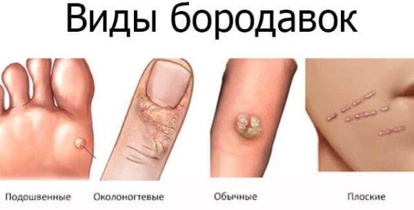 boala venerică a condilomului
