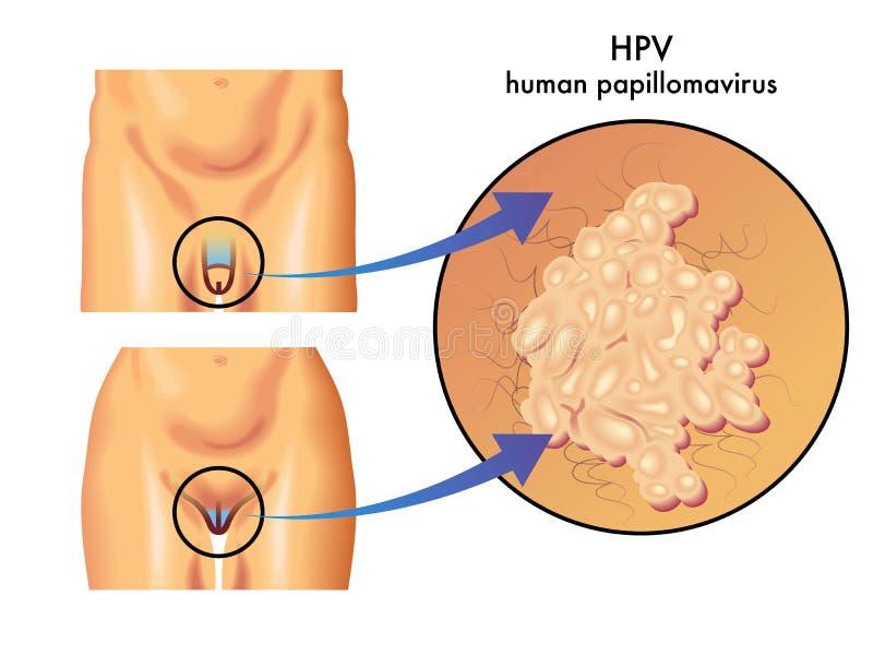 human papilloma is vishnevsky unguent din papiloame cum se aplică