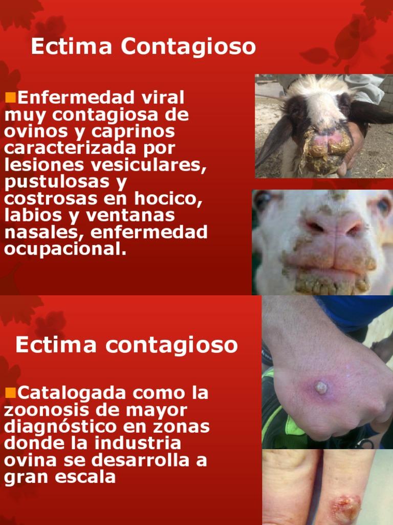 papilomatosis bovina historia le virus papillomavirus humain vph)