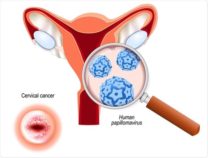 condilom plat pe tratamentul colului uterin