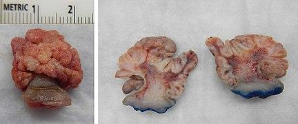 medicamentele parazite sunt simptome ale corpului uman anemia 9 g dl