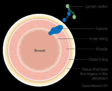 colorectal cancer in lymph nodes significado de oxiuriasis