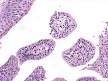 papilloma bladder benign